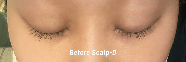 scalpd-2